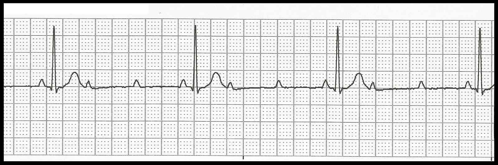 Float nurse ekg rhythm strip quiz 149