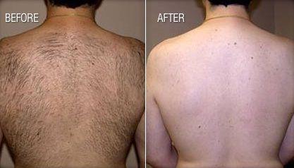 male back waxing