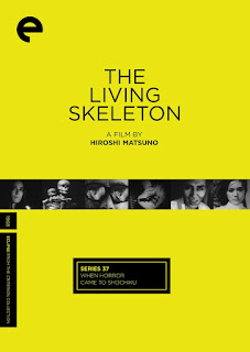 Living Skeleton cover and link to box set on Amazon