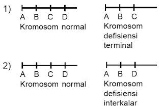 Delesi/defisiensi terminal interkalar (interticial)