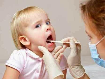 Mẹo điều trị, chữa viêm vọng cho trẻ em hiệu quả