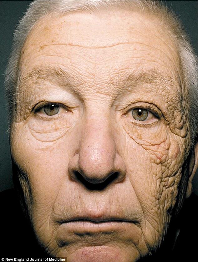Foto impressionante mostra os danos que o sol causa na nossa pele