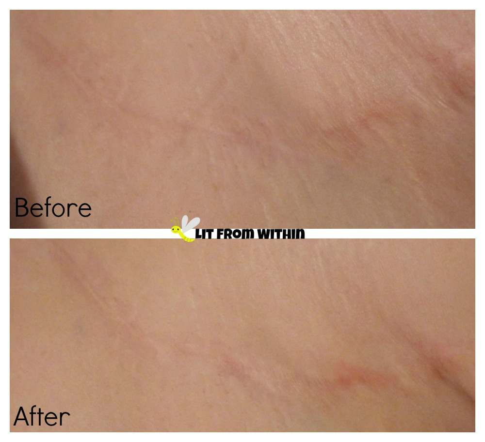 My scar after using my stretch marks before and after using Body Merry's Stretch Marks & Scars Defense Cream
