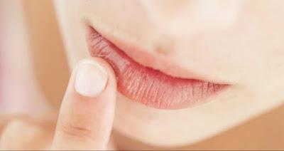 Cara Mengobati Bibir Kering