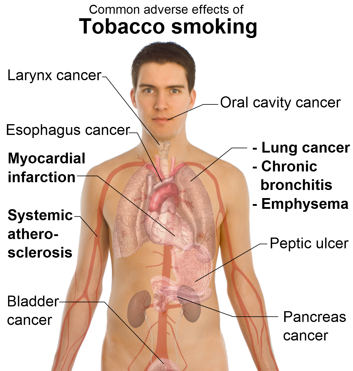 the acute effects of cigarette smoking Seen by many as a healthy alternative to tobacco smoking  short-term effects of smoking with e-cigarettes might acute effect of e-cigarette on.