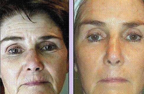Natural Way To Get Rid Of Wrinkles Between Eyebrows