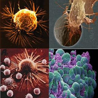 bentuk dan macam-macam sel kanker dan Cara Alami Mengobati Kanker Dengan Ceremai