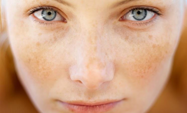 Penyebab Terjadinya Flek Hitam Di Wajah
