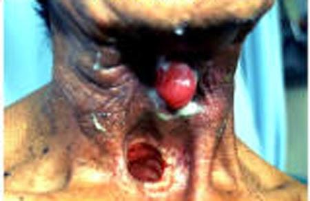 sexo oral - Sida y enfermedades de transmisin sexual