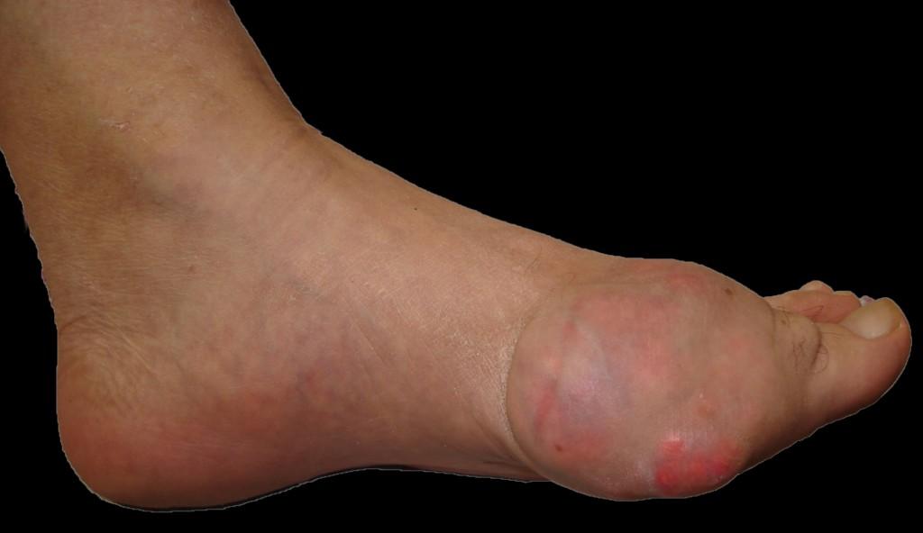 el tomate frito tiene acido urico gota dedo gordo pie izquierdo que no debo comer para el acido urico