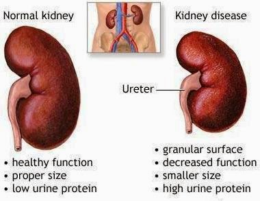 renal failure disease