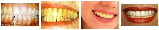 10 Hal Sederhana Yang Membuat Gigi Anda Kuning
