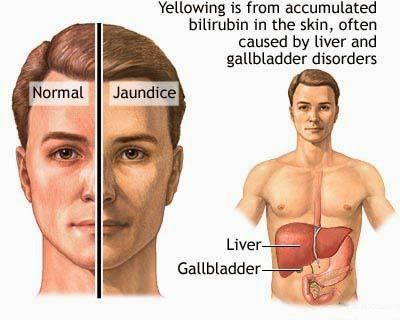 Jaundice  Jaundice is not a disease but rather a sign that can occur in many different diseases. Jaundice is the yellowish staining of the skin and sclera (the whites of the eyes) that is caused by high levels in blood of the chemical bilirubin. The colour of the skin and sclera vary depending on the level of bilirubin. When the bilirubin level is mildly elevated, they are yellowish. When the bilirubin level is high, they tend to be brown. Causes of Jaundice?  Bilirubin comes from red blood cells. When red blood cells get old, they are destroyed. Haemoglobin, the iron-containing chemical in red blood cells that carries oxygen, is released from the destroyed red blood cells after the iron it contains is removed. The chemical that remains in the blood after the iron is removed becomes bilirubin.  The liver has many functions. One of the liver's functions is to produce and secrete bile into the intestines to help digest dietary fat. Another is to remove toxic chemicals or waste products from the blood, and bilirubin is a waste product. The liver removes bilirubin from the blood. After the bilirubin has entered the liver cells, the cells conjugate (attaching other chemicals, primarily glucuronic acid) to the bilirubin, and then secrete the bilirubin/glucuronic acid complex into bile. The complex that is secreted in bile is called conjugated bilirubin. The conjugated bilirubin is eliminated in the feces. (Bilirubin is what gives feces its brown colour.) Conjugated bilirubin is distinguished from the bilirubin that is released from the red blood cells and not yet removed from the blood which is termed unconjugated bilirubin.  Jaundice occurs when there is  1. Too much bilirubin being produced for the liver to remove from the blood. (For example, patients with haemolytic anaemia have an abnormally rapid rate of destruction of their red blood cells that releases large amounts of bilirubin into the blood),  2. A defect in the liver that prevents bilirubin from being removed 