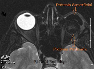 Protesis+ocular5.png