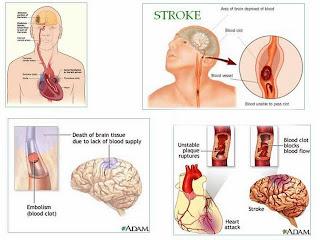 Faktor Pemicu Penyakit Stroke
