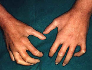 Esclerosis Sistémica Progresiva (Esclerodermia)