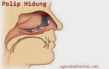 Obat Sakit Polip Hidung Tradisional