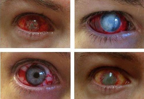 Cosmetics Zone: Eye Contact Lenses