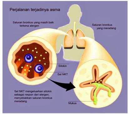 laporan pendahuluan asma