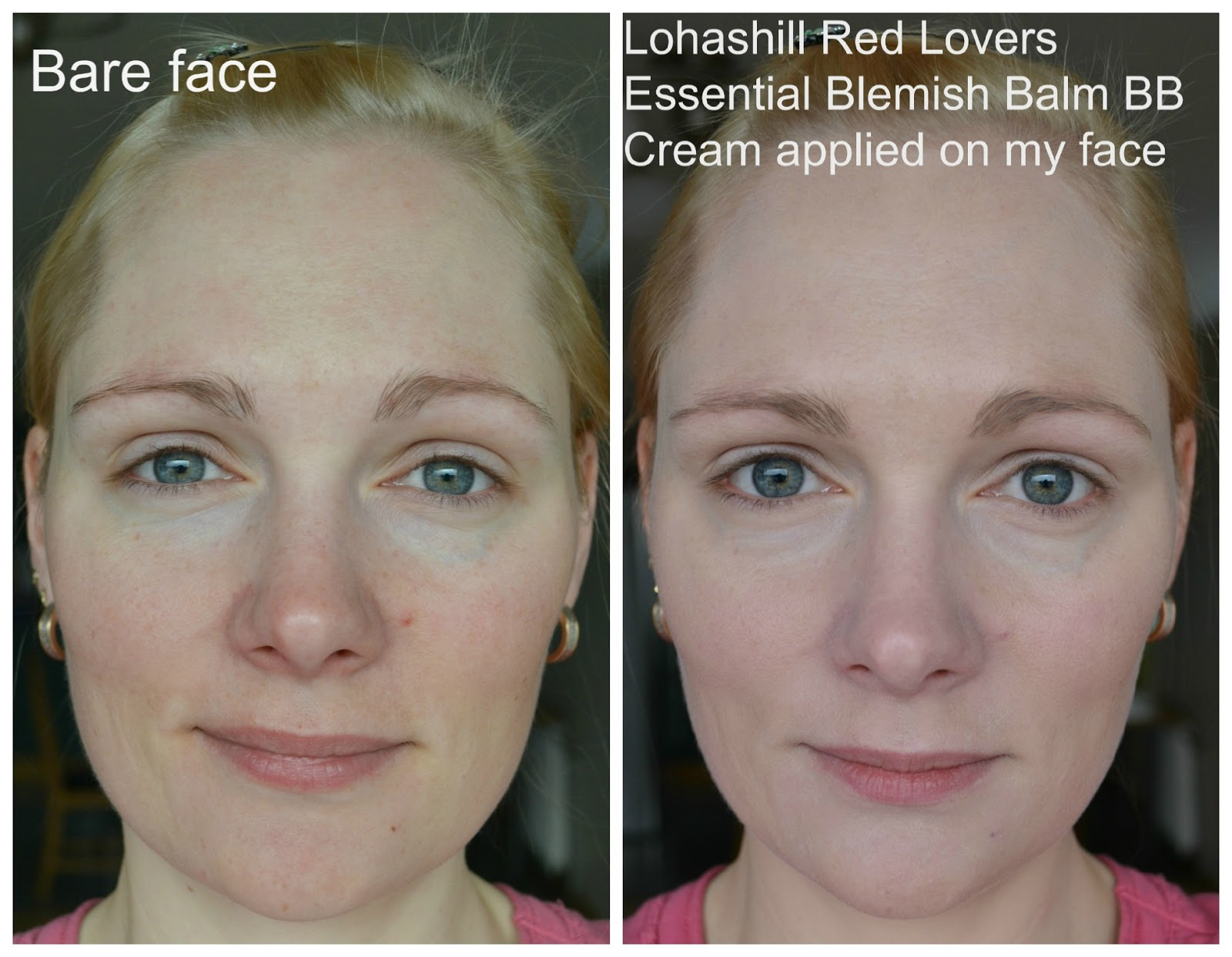 Lohashill Red Lovers Essential Blemish Balm BB Cream before after