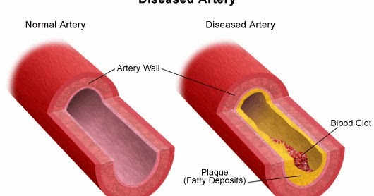 Can Chelation Therapy Help Heart Disease