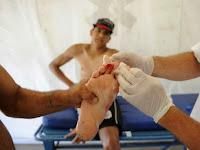 60 Terluka Akibat Serangan Piranha di Argentina