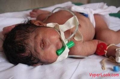 Bayi Aneh Lahir Dengan Satu Mata