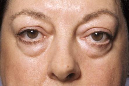 Láser epilyatsiya los ojos