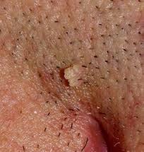 Image Tanda Penyakit Kondiloma Akuminata Pada Wanita