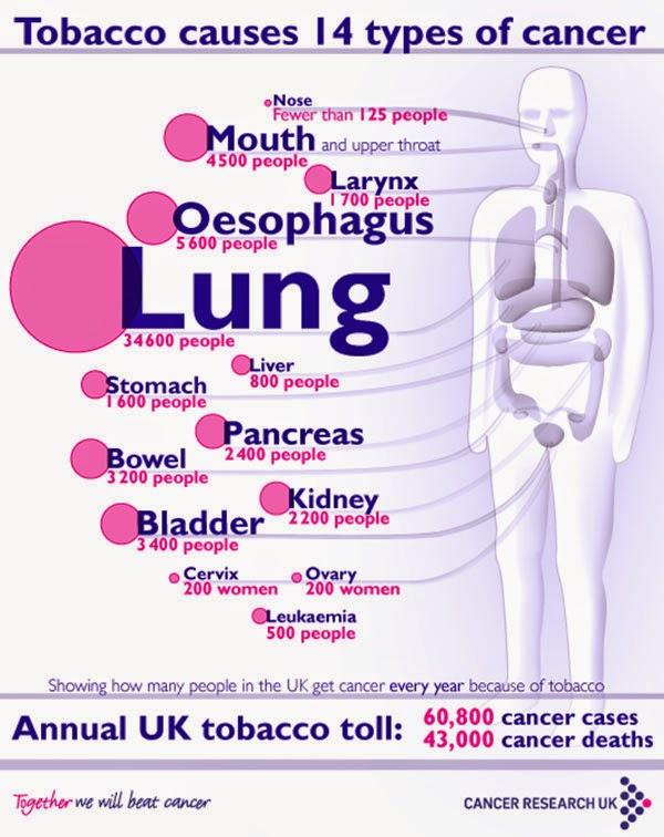 Jenis Kanker Yang Disebabkan Oleh Rokok