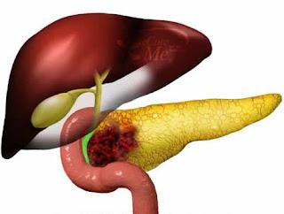 Pengobatan Tradisional Kanker Pankreas