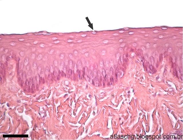 Corte de esôfago - Tecido epitelial de revestimento estratificado pavimentoso não-queratinizado