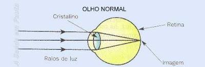 Esquema da formação da imagem em um olho normal. A imagem se forma exatamente sobre a retina.