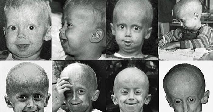 Progeria Family Circle: Les symptômes