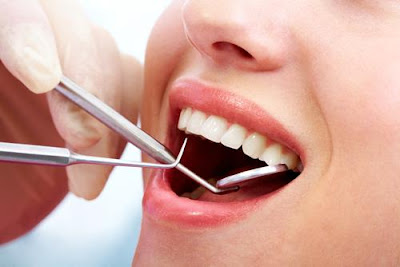 Periodontal Disease Prevention