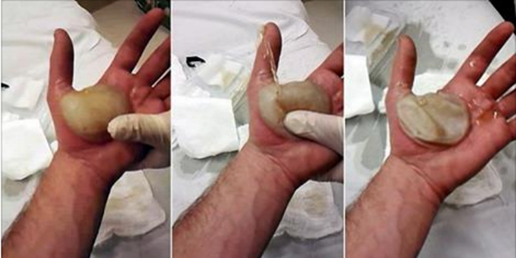 This Man Got The Biggest Blister Ever Entertainment