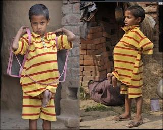 Fetus In Fetus, Parasitic Twin, Deepak Paswan