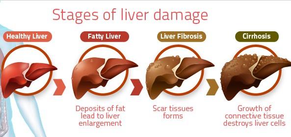 stages-of-liver-damage%2B%25282%2529.jpg?width=500