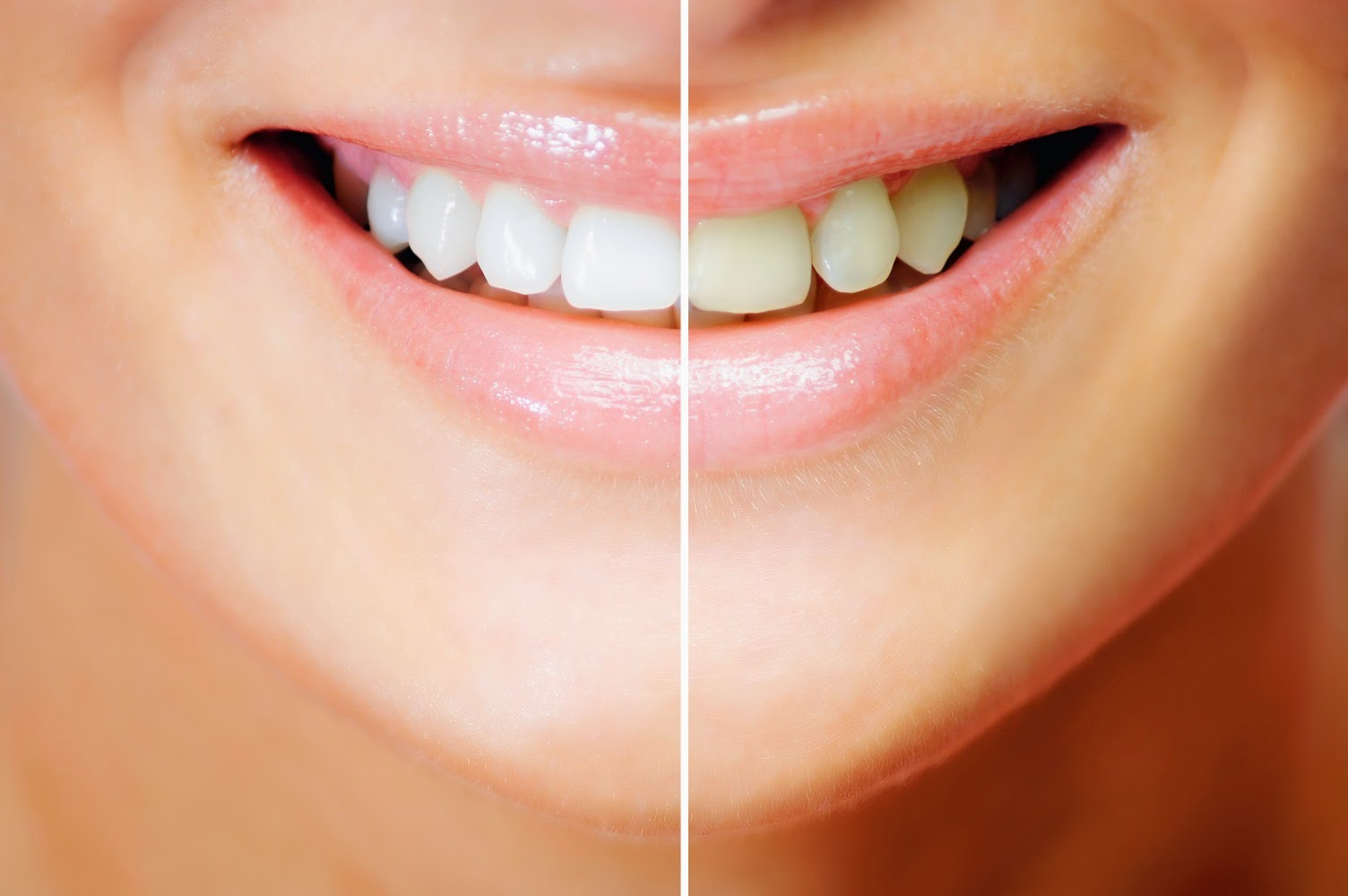 3 Natural Ways to Whiten Your Teeth at Home