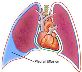 Management Of Pleural Effusion,Pleural effution, Pleural effussion, treatment pleural effusion,  Pleural effusion Procedure, left pleural effusion