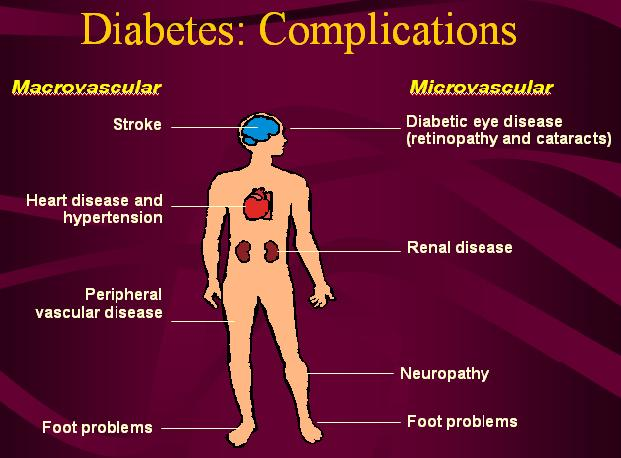 Type 1 Diabetes Mellitus Complications