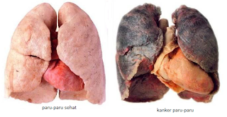 Obat Herbal Kanker Paru-paru