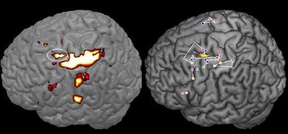 cerveau écriture dysgraphie