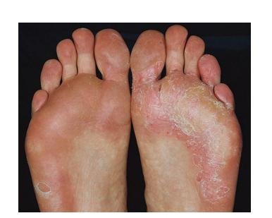Tinea Pids Athlete S Foot Symptoms Treatment And Prevention
