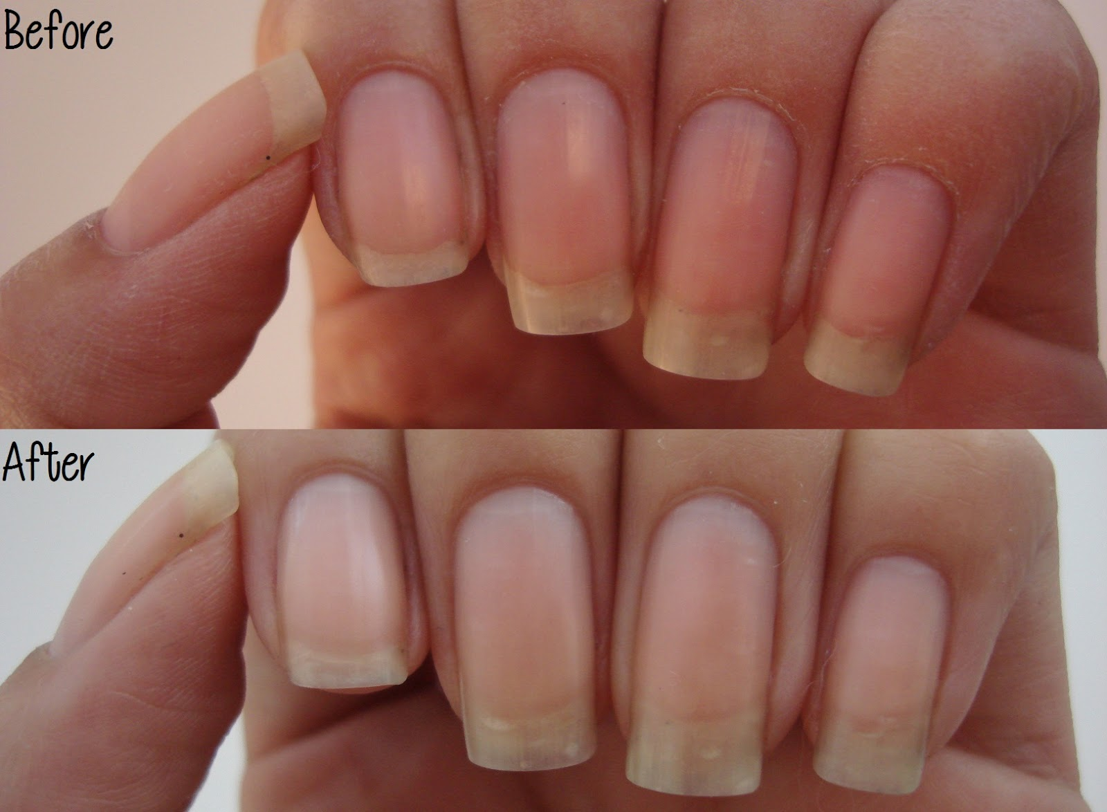 Intense Polish Therapy Theface Milk Calcium Nail Pack