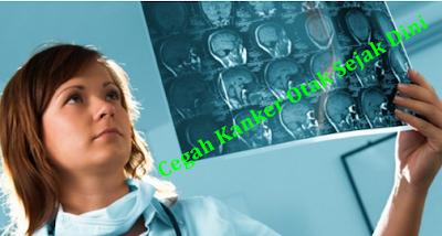 Mengenali Penyakit Kanker Otak Stadium 4