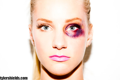 Heather Morris with black eye, by Tyler Shields