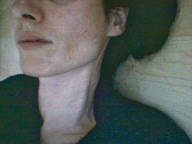 Mind Control und Strahlenfolter : Fotos Folter