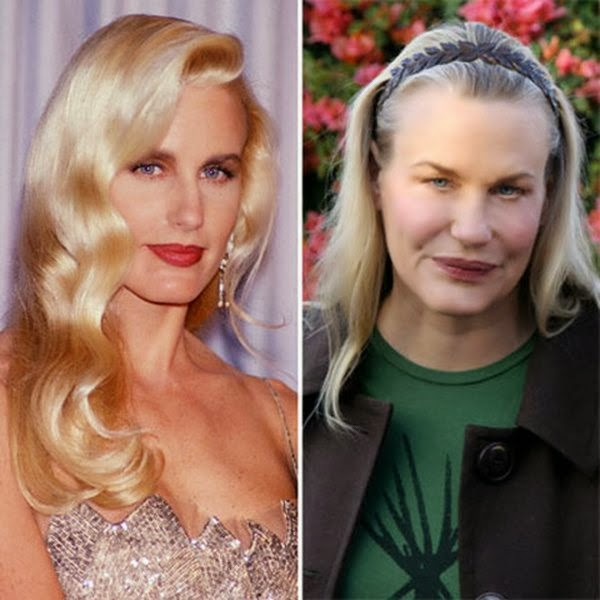 Top 10 Plastic Surgeries Gone Wrong