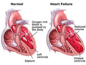 heart-failure,health,disease,hypertension